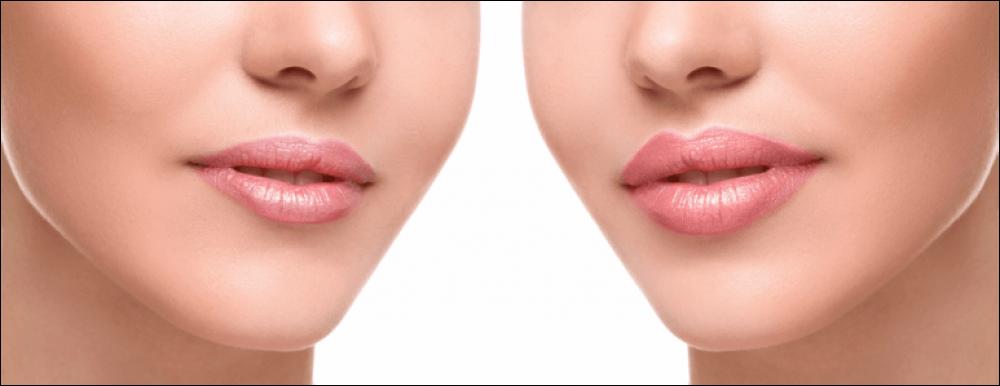 Филъри - Angel Face - Салони за красота